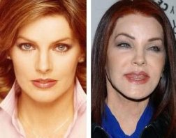 Priscilla-Presley-Bad-Plastic-Surgery